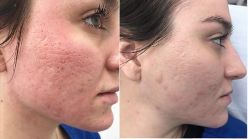 laser for acne scars
